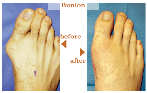 Bunions Before and After