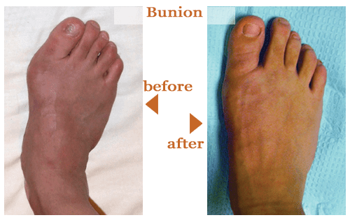 Bunions Before and After 3