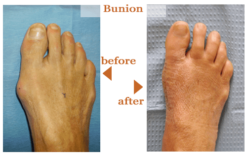 Bunions Before and After 4