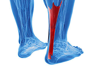 achilles tendon treatment in Chicago, IL 60654, Lombard, IL 60148, Tinley Park, IL 60477