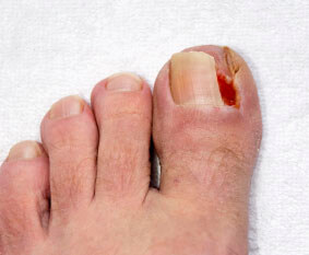 ingrown toenail treatment Chicago IL 60654; Lombard, IL 60148; Tinley Park, IL 60477