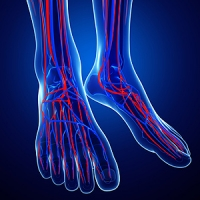 Symptoms of Chronic Venous Insufficiency