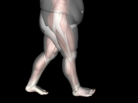 Obesity May Lead to Ankle Pain