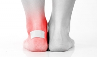 Why Foot Blisters Can Develop