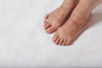 Understanding Hammertoes, Claw Toes, and Mallet Toes